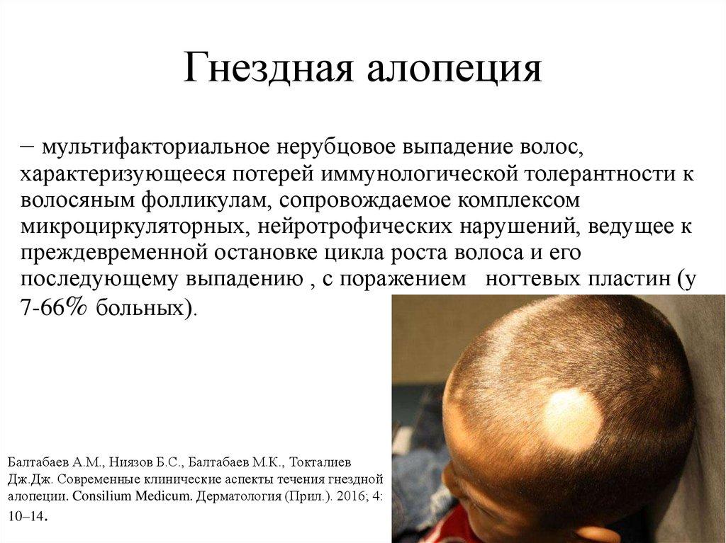Почему у ребенка сильно выпадают волосы? частые заболевания!
