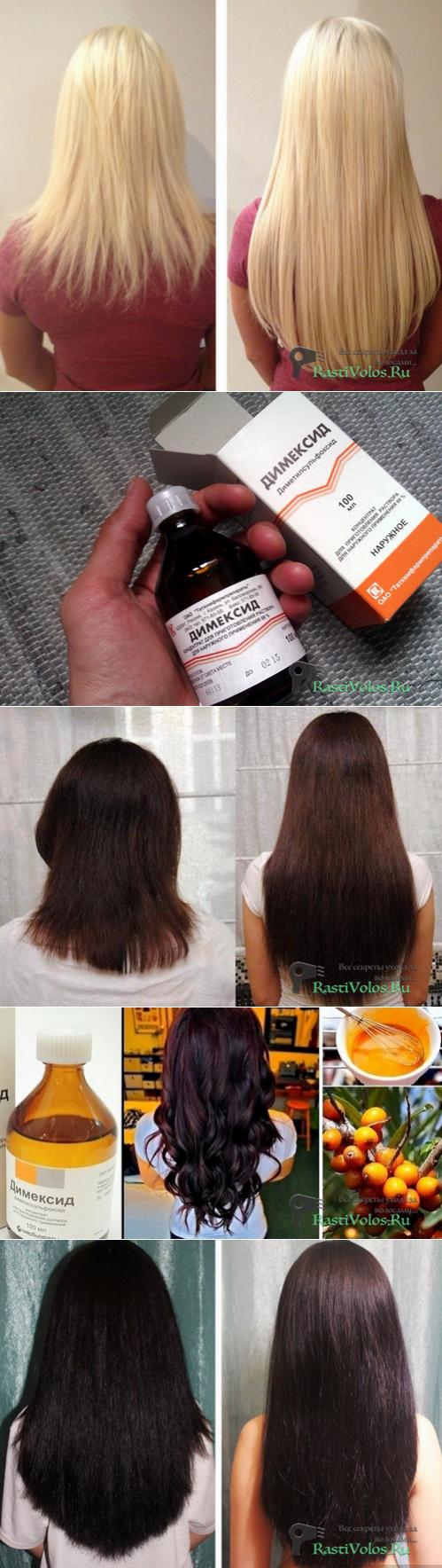 Димексид для волос – рецепты масок