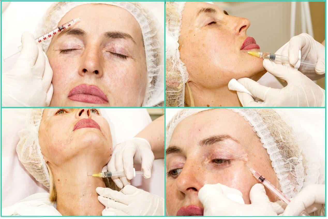 Контурная пластика лица, губ, скул филлерами гиалуроновой кислоты в а клинике: доступные цены