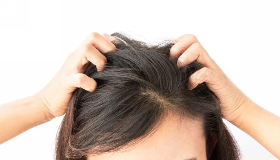 Чешется голова и выпадают волосы: факты и решения