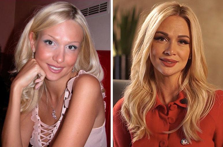 Фото российских знаменитостей и голливудских звезд до и после пластики