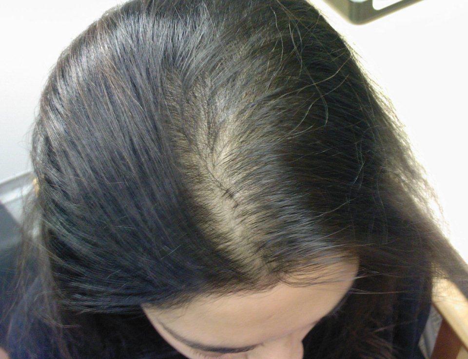 Выпадение волос у женщин как симптом болезни