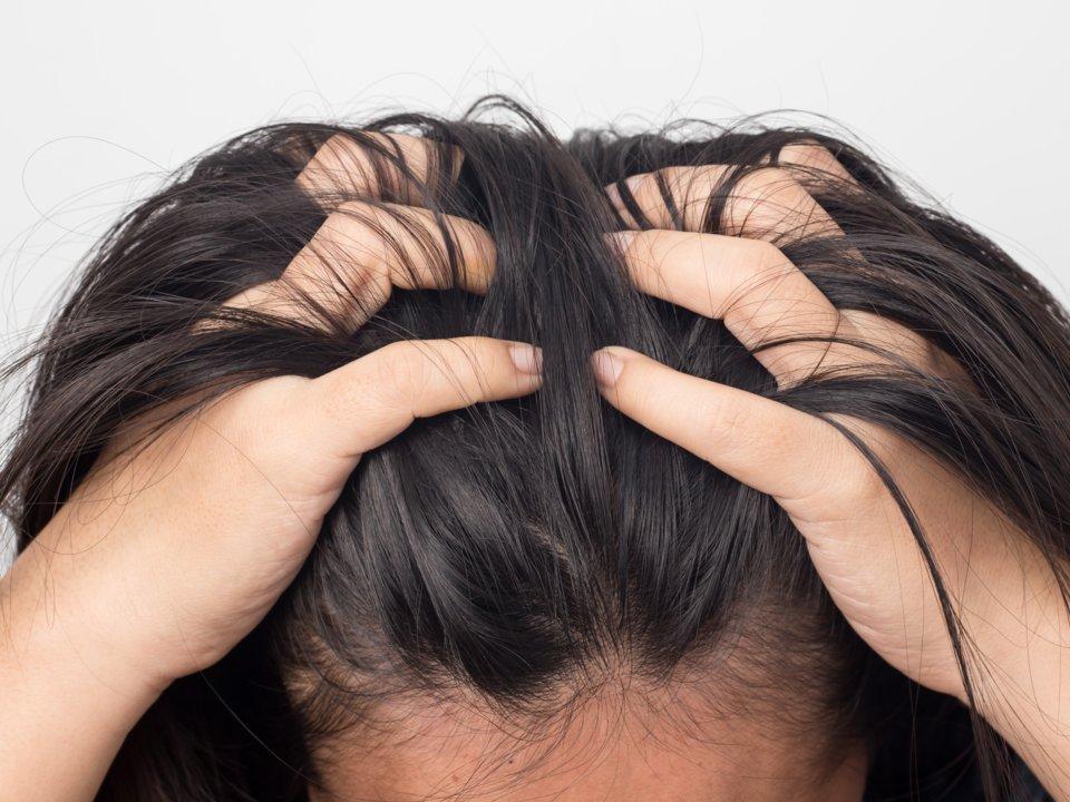 Чешется голова и выпадают волосы. что делать, причины и лечение у женщин и мужчин