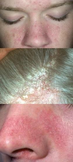Что такое пероральный дерматит на лице и как его лечат