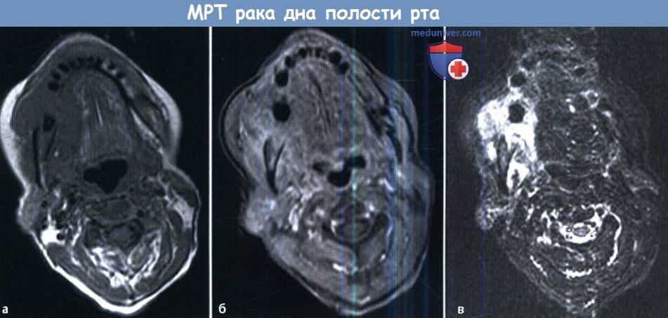 Рак слюнной железы