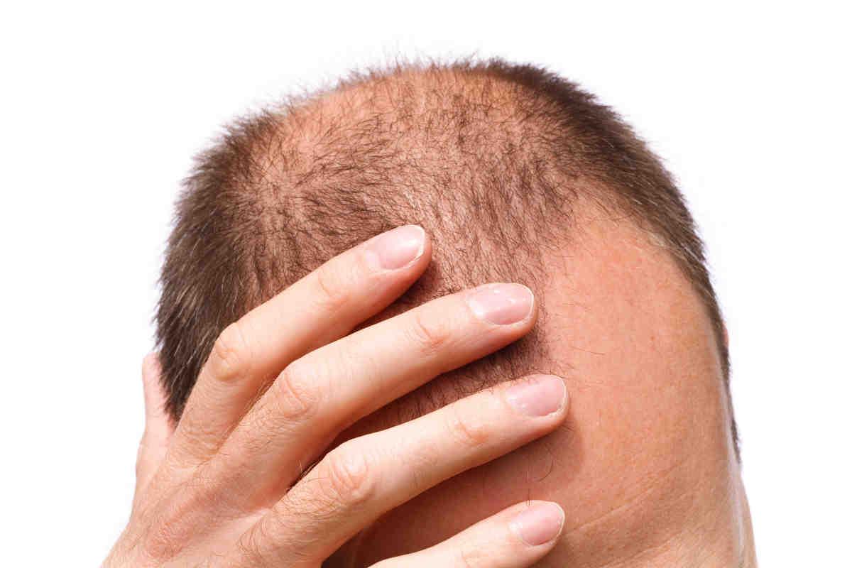 Облысение у мужчин - причины и средства для лечения
