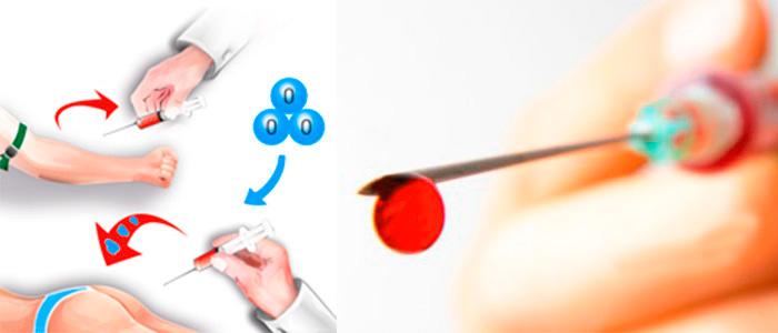Аутогемотерапия в косметологи — показания и противопоказания