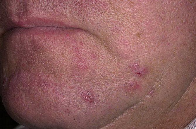 Пиодермия – фото, лечение и симптомы, виды, заразность у детей и взрослых