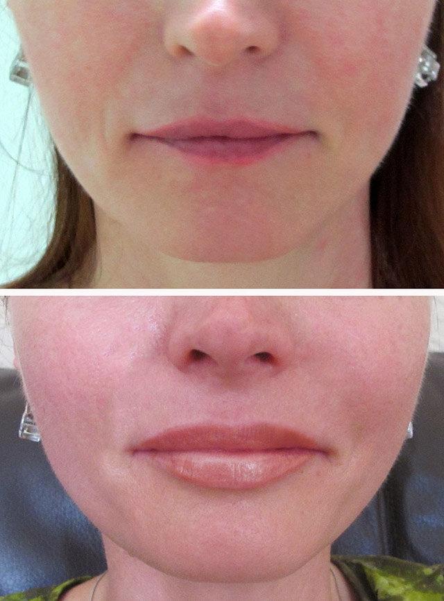 Увеличение губ гиалуроновой кислотой: подготовка к процедуре, результаты до и после, последствия