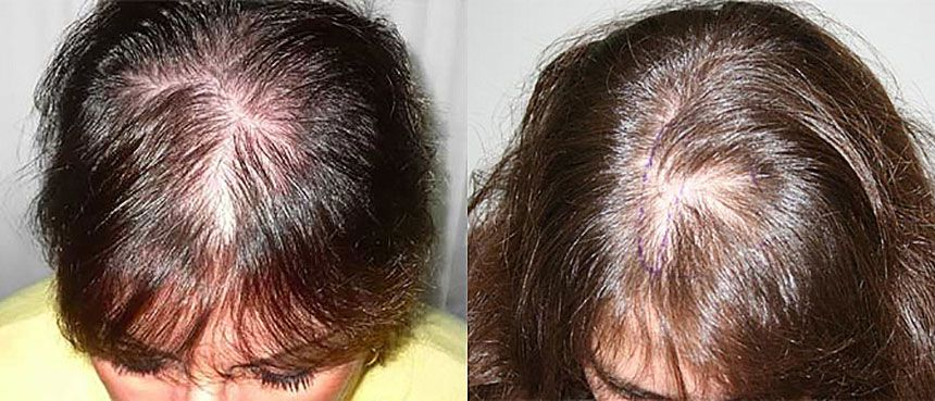 Выпадение волос у женщин – причины, лечение сильного выпадения