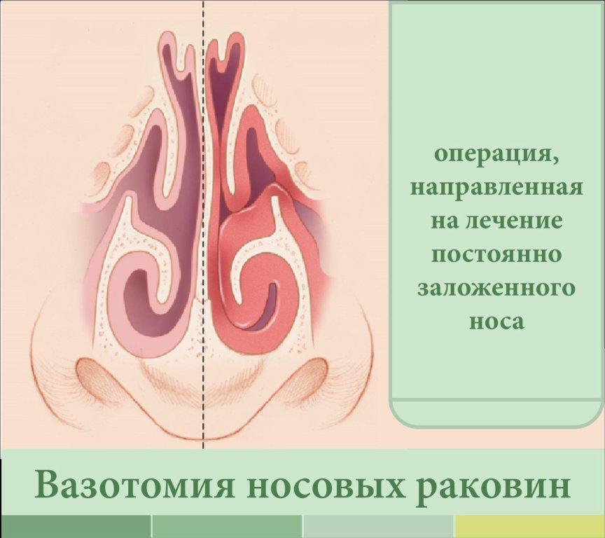 Вазотомия носовых раковин: понятие, все методы - описание и эффективность