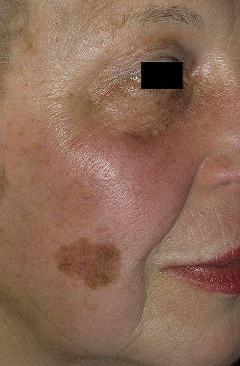Базалиома на лице – фото кожи, симптомы, методы лечения на разных стадиях