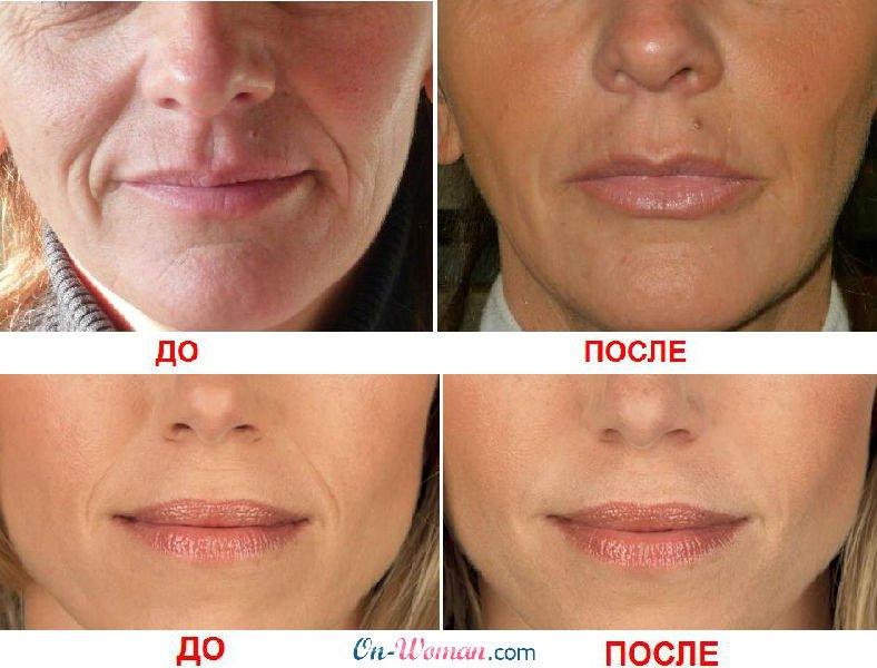 Какова польза гиалуроновой кислоты для лица: применение в косметологии и домашних условиях