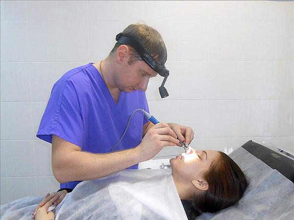 Вазотомия носовых раковин послеоперационный период