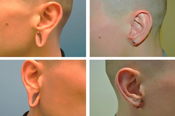 Лазерная отопластика: отзывы и результаты. уши после отопластики - отзывы. отопластика (пластика ушей)