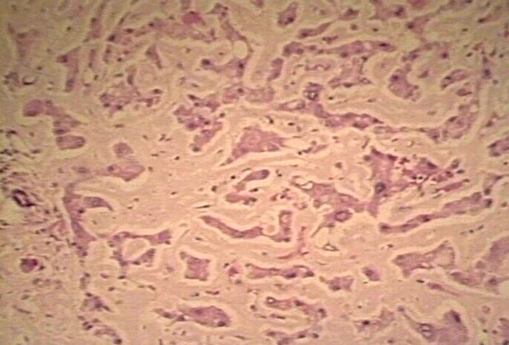 Амилоидоз почек. причины и симптомы