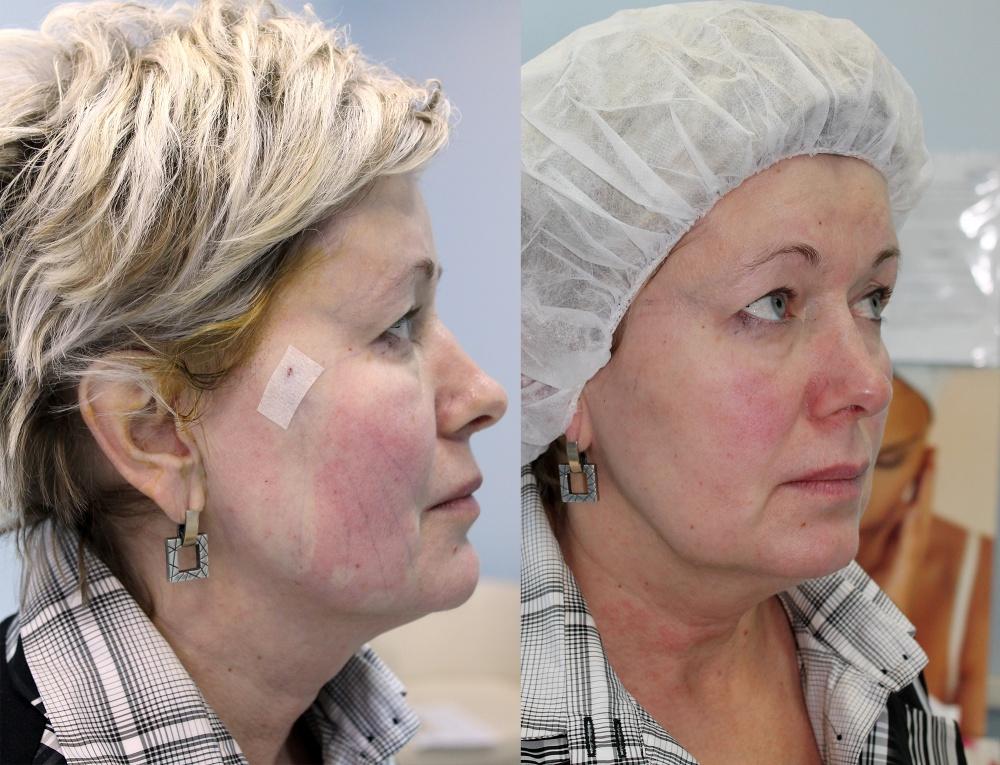 Нити аптос для подтяжки лица (aptos) в а клинике: низкая цена в москве, отзывы, фото