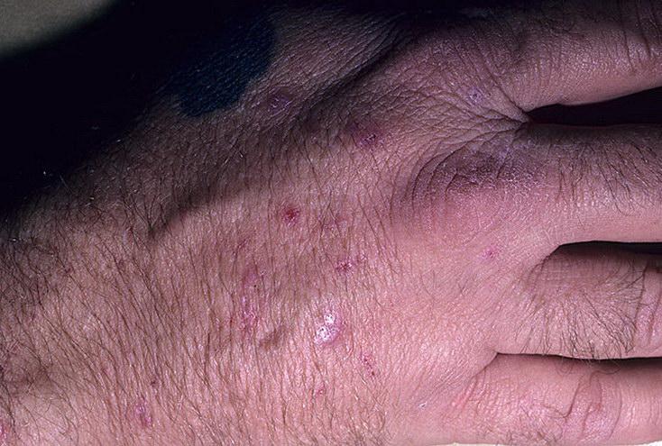 Красный плоский лишай (красный дерматит) – причины, симптомы и проявления на коже, на слизистых оболочках полости рта и половых органов (фото), диагностика. эффективное лечение у взрослого человека, у детей