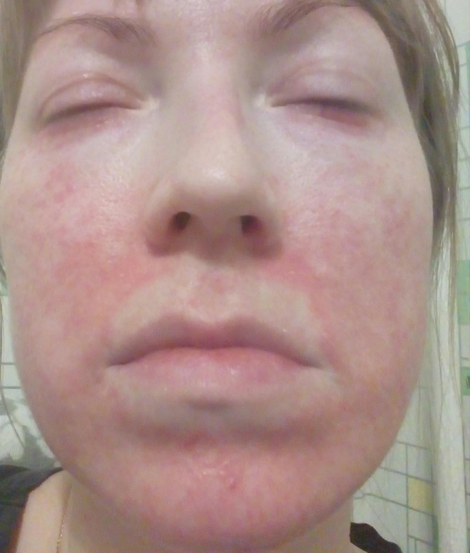 Периоральный дерматит - лечение, диета, причины