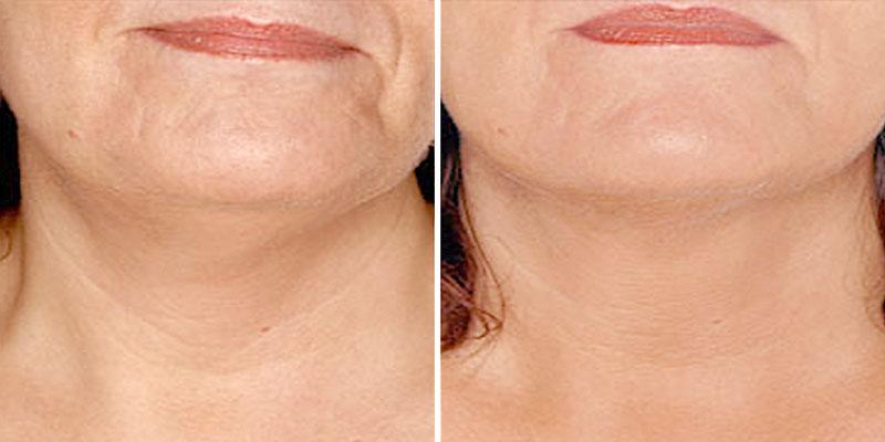 Инъекции для омоложения лица: советы косметологов, самые лучшие методы