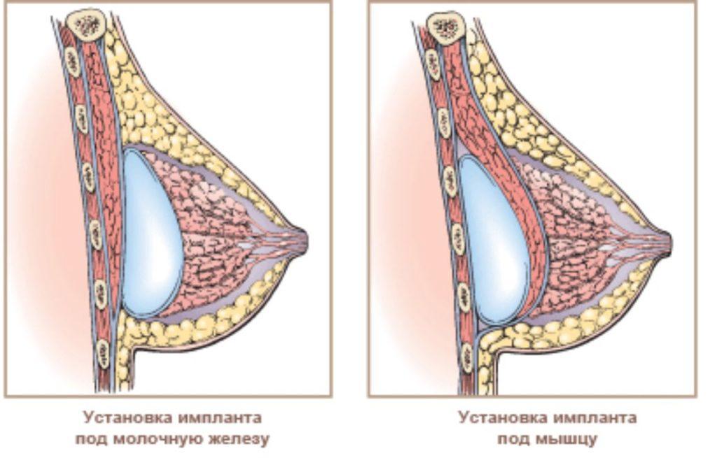Увеличение груди: современные способы установки имплантов