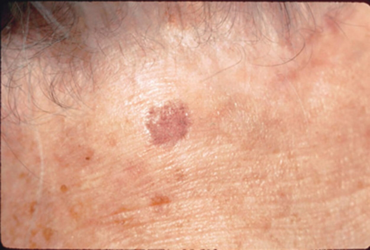 Что такое кератоз кожи и как его лечить