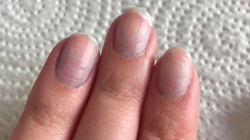 Черные, темные пятна на ногтях: в чем причина появления? | красивые ногти - дополнение твоего образа
