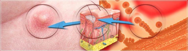 Причины появления фурункулов на теле и лечение фурункулеза