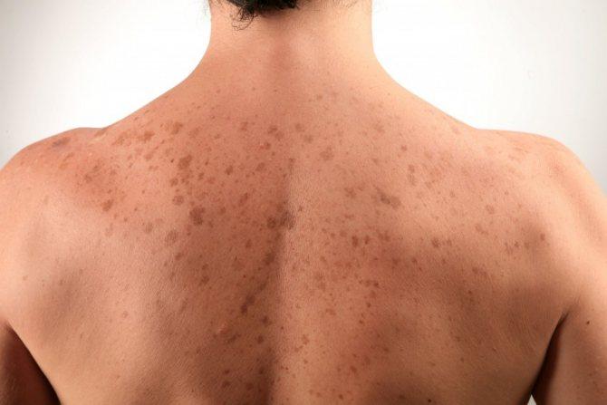 Отрубевидный лишай. причины, симптомы, признаки, диагностика и лечение патологии :: polismed.com