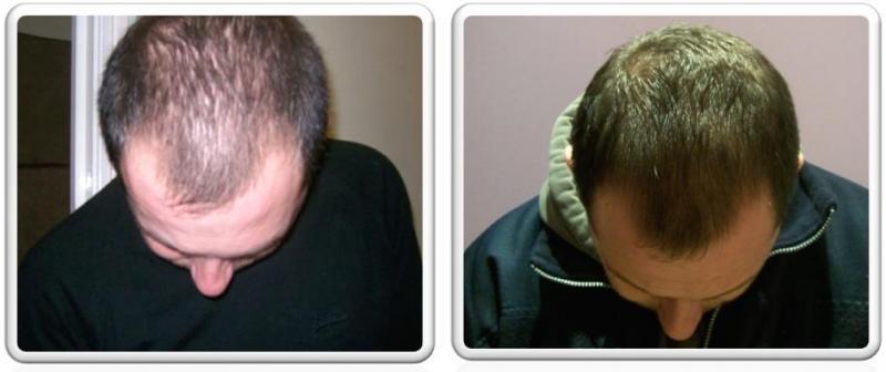 Лечение выпадения волос у мужчин народными средствами