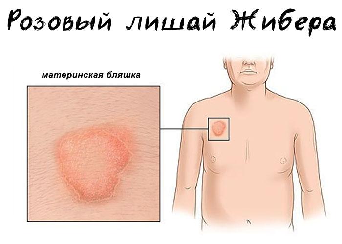 Лишай на теле у человека: эффективное лечение, причины и симптомы