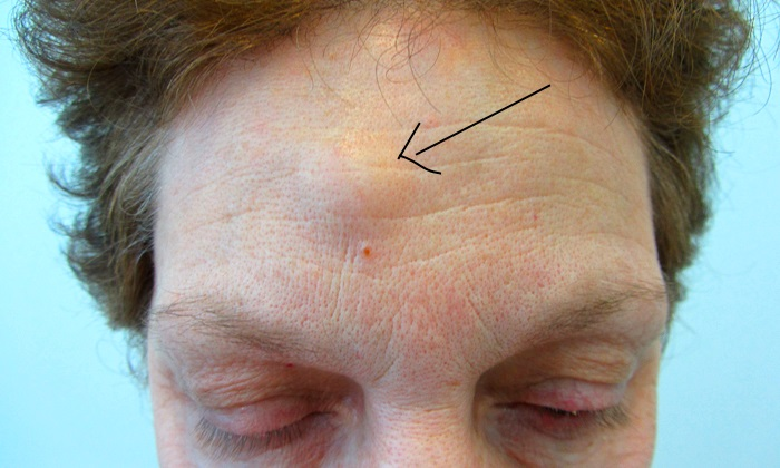 Жировики на лице – причины и эффективные способы лечения