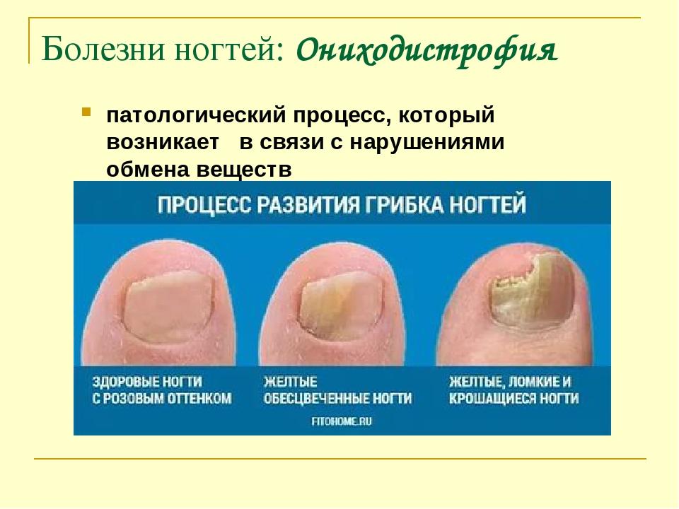 Лечение ногтей спб