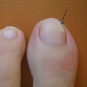 Черные точки и полосы, тёмные пятна на ногтях: причины, лечение