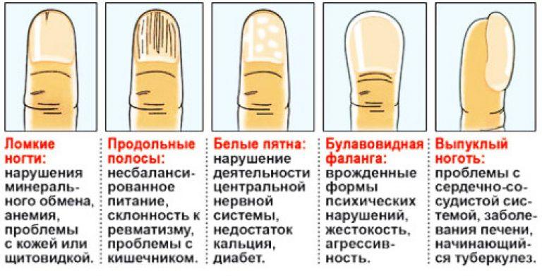 Потемнения на ногтях: 8 распространенных причин, лечение