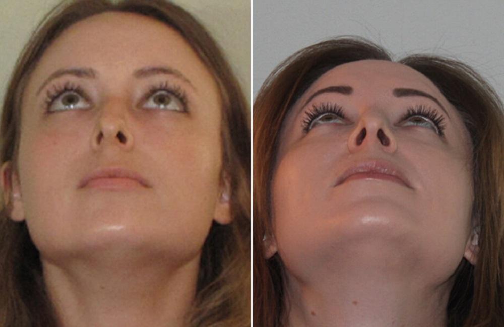Септопластика носа