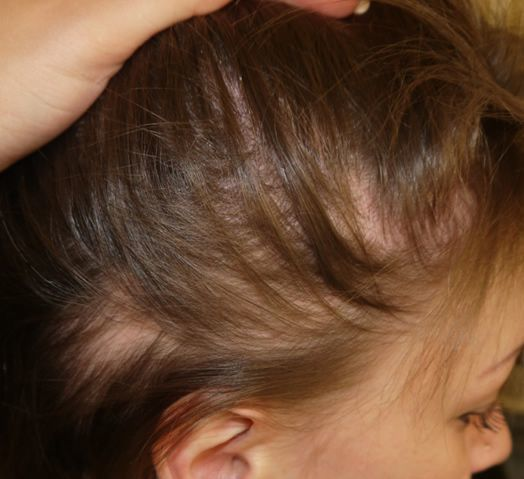 Алопеция у детей - лечение, причины и симптомы