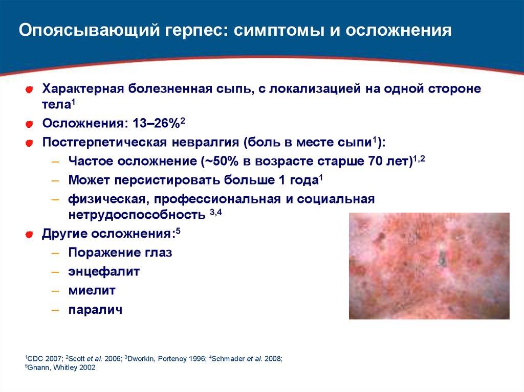 Подробно о лечении опоясывающего лишая (герпеса зостера)