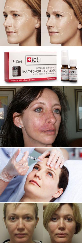 Гиалуроновая кислота: за и против