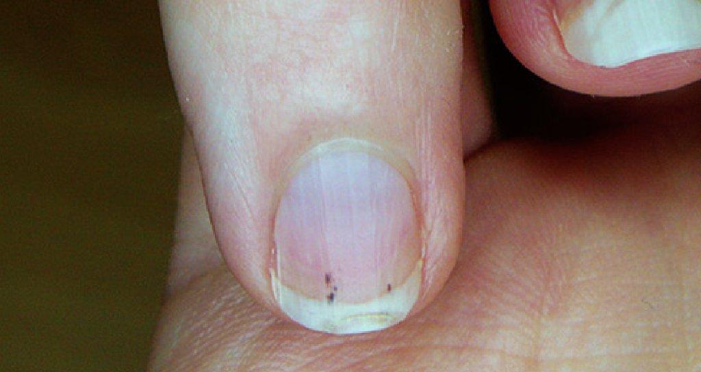 Темные, красные или коричневые пятна и точки на ногтях