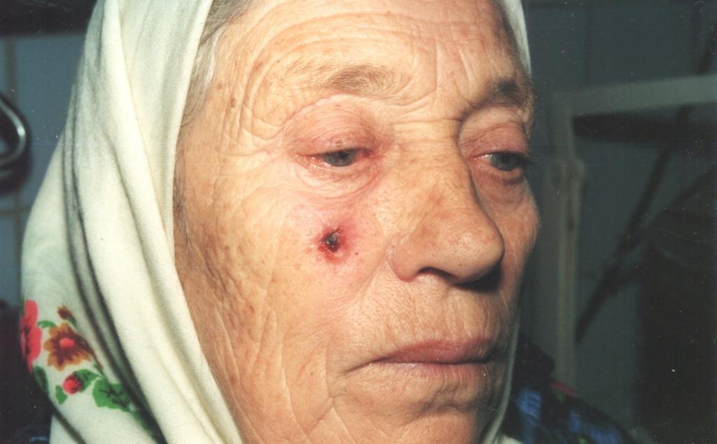 Плоскоклеточный рак кожи