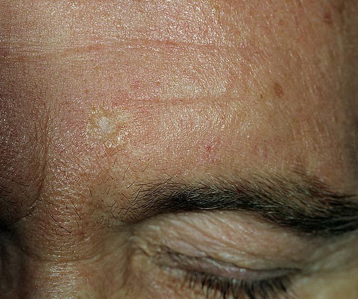 Базалиома кожи лица: виды и методы лечения заболевания