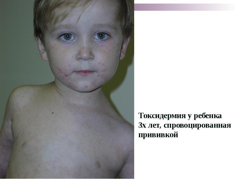Токсикодермия. лечение, причины и симптомы токсикодермии у детей и взрослых.